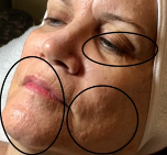 BEFORE MICRONEEDLING w/ BIOLIGHT THERAPY