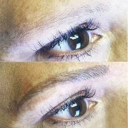 before & after Microblading 2017