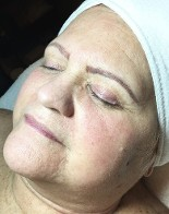 After Face & Throat Microneedling